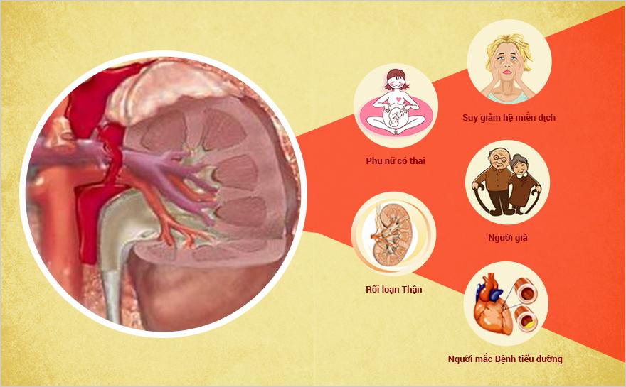 Kết quả hình ảnh cho Nhiễm trùng đường tiểu